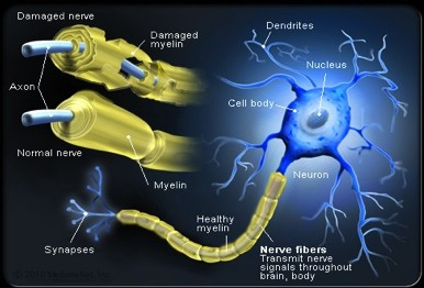 myelin-sheath-disorders